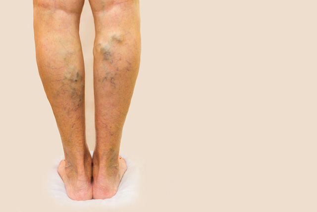 Preventing and Causes of Venous Disease