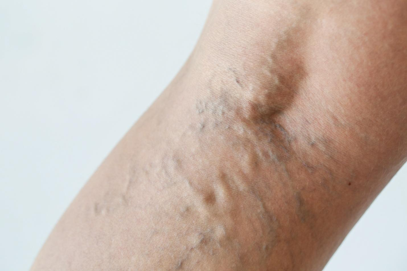 Is Varicose Vein Treatment Necessary? Swelling May Be Due To Another Reason