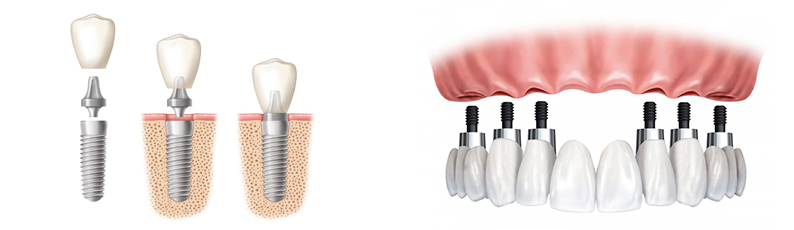 Recover Your Smile Fast With Same Day Crowns